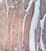 Immunohistochemistry (Formalin/PFA-fixed paraffin-embedded sections) - Anti-DAP Kinase 2 antibody (ab37995)