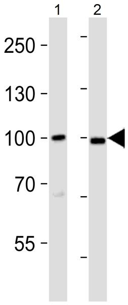 Western blot - Anti-MAP3K12 antibody (ab37996)