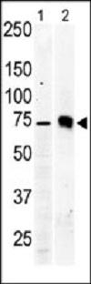 Western blot - Anti-PKC beta 2 antibody (ab38279)