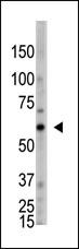 Western blot - Anti-OASL antibody - Carboxyterminal end (ab38325)