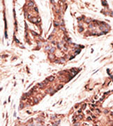 Immunohistochemistry (Formalin/PFA-fixed paraffin-embedded sections) - Anti-OASL antibody - Carboxyterminal end (ab38325)