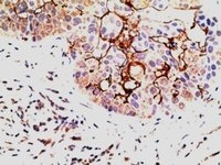 Immunohistochemistry (Formalin/PFA-fixed paraffin-embedded sections) - Anti-EPS8 antibody (ab38329)
