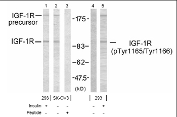 Western blot - Anti-IGF1 Receptor (phospho Y1165 + Y1166) antibody (ab38465)