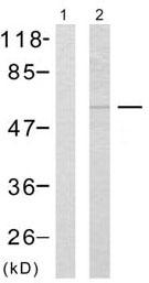 Western blot - p53 (phospho S15) antibody (ab38497)