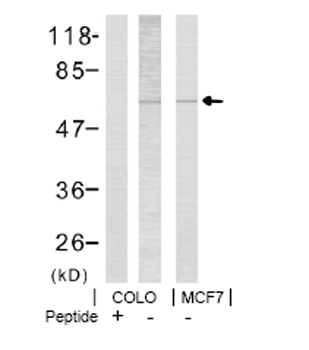 Western blot - Anti-LIM Kinase 1 (phospho T508) antibody (ab38508)