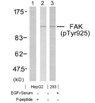 Western blot - Anti-FAK (phospho Y925) antibody (ab38512)