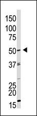 Western blot - Anti-GDF 9 antibody (ab38544)