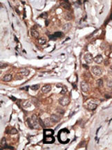 Immunohistochemistry (Formalin/PFA-fixed paraffin-embedded sections) - Anti-htrA1 antibody (ab38610)