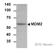 Western blot - Anti-MDM2 antibody (ab38618)