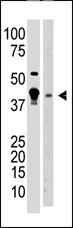 Western blot - MBD2 antibody (ab38646)