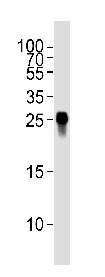 Western blot - Anti-GFP antibody [6AT316] (ab38689)