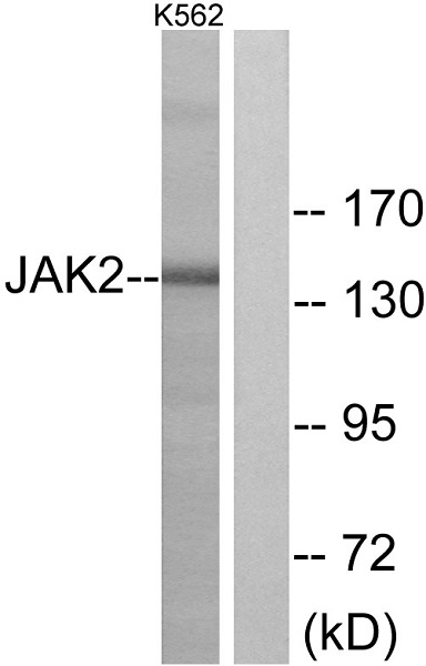 Western blot - Anti-JAK2 antibody (ab39636)