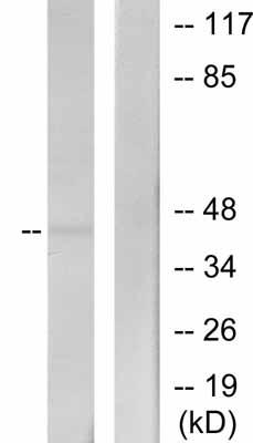Western blot - MEK4 antibody (ab39648)