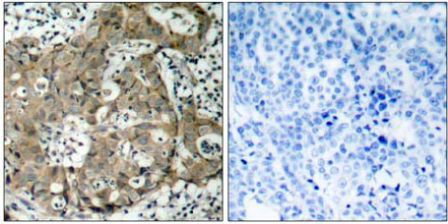 Immunohistochemistry (Formalin/PFA-fixed paraffin-embedded sections) - Anti-FOXO1A antibody - ChIP Grade (ab39670)