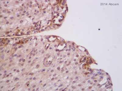 Immunohistochemistry (Formalin/PFA-fixed paraffin-embedded sections) - Anti-Caspase-3 antibody (ab4051)