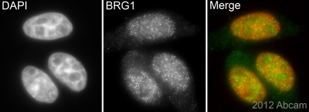 Immunocytochemistry/ Immunofluorescence - Anti-BRG1 antibody (ab4081)