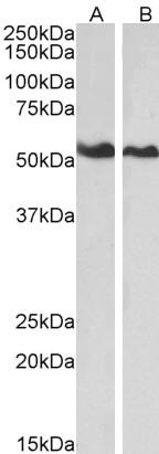 Western blot - Anti-Annexin A11 antibody (ab4121)
