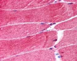 Immunohistochemistry (Formalin/PFA-fixed paraffin-embedded sections) - Anti-MURF1 antibody (ab4125)
