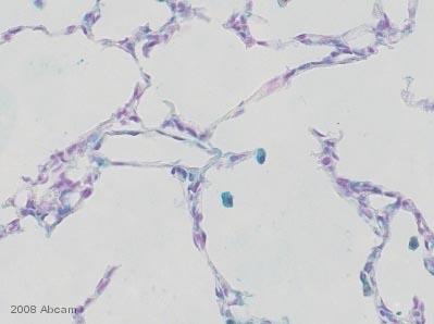 Immunohistochemistry (Frozen sections) - Anti-MURF1 antibody (ab4125)