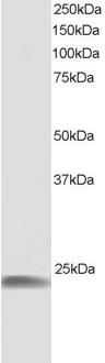 Western blot - Anti-Hsp22 antibody (ab4149)