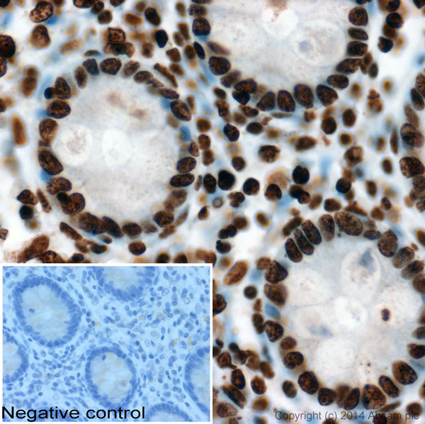 Immunohistochemistry (Formalin/PFA-fixed paraffin-embedded sections) - Anti-Histone H1 antibody [AE4] (ab4269)