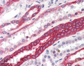 Immunohistochemistry (Formalin/PFA-fixed paraffin-embedded sections) - Anti-RNF34 antibody (ab4363)