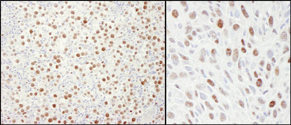 Immunohistochemistry (Formalin/PFA-fixed paraffin-embedded sections) - Anti-MCM4 antibody (ab4459)
