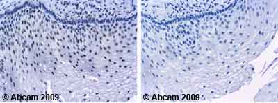 Immunohistochemistry (Formalin/PFA-fixed paraffin-embedded sections)-Annexin A1 antibody [6E4/3](ab4635)