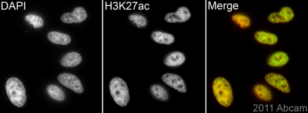 Immunocytochemistry/ Immunofluorescence - Anti-Histone H3 (acetyl K27) antibody - ChIP Grade (ab4729)