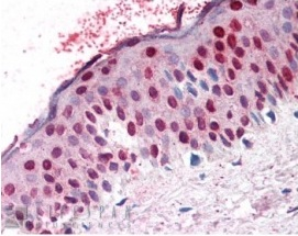 Immunohistochemistry (Formalin/PFA-fixed paraffin-embedded sections) - Anti-RanGAP1 antibody (ab4784)
