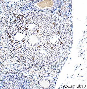 Immunohistochemistry (Formalin/PFA-fixed paraffin-embedded sections) - Anti-FAK (phospho S732) antibody (ab4792)