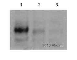 Western blot - Anti-FAK (phospho Y861) antibody (ab4804)