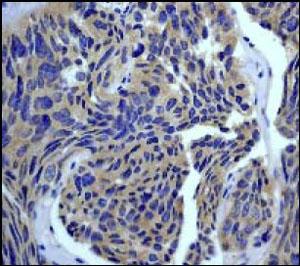 Anti-Rho antibody [EP487Y] (ab40673)