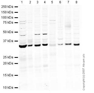 Western blot - Emerin antibody (ab40725)