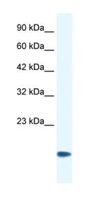 Western blot - Anti-CSRP3 antibody (ab42504)