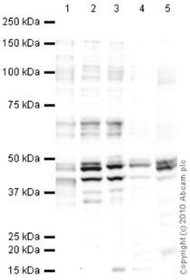 Western blot - CNPase antibody [mAbcam 44289] (ab44289)