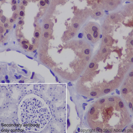 Immunohistochemistry (Formalin/PFA-fixed paraffin-embedded sections) - Anti-MUC1 antibody [EP1024Y] (ab45167)