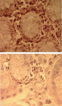 Immunohistochemistry (Formalin/PFA-fixed paraffin-embedded sections) - TLR7 antibody - Azide free (ab45371)