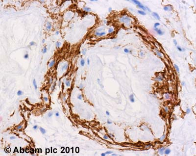 Immunohistochemistry (Formalin/PFA-fixed paraffin-embedded sections) - Anti-Hrk antibody (ab45419)