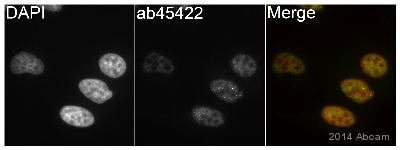 Immunocytochemistry/ Immunofluorescence - Anti-Hormone sensitive lipase antibody (ab45422)