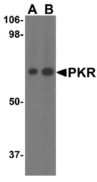 Western blot - Anti-PKR antibody (ab45427)