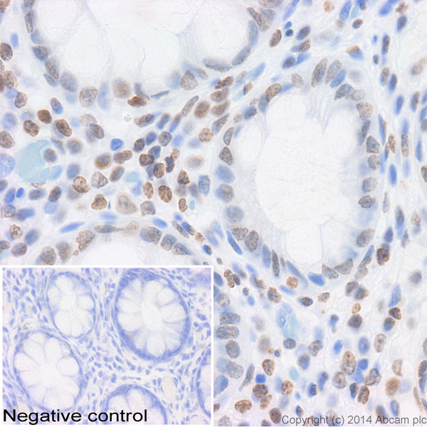 Immunohistochemistry (Formalin/PFA-fixed paraffin-embedded sections) - Anti-Histone H2B antibody (ab45695)