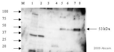 Western blot - Anti-DCDC2 antibody (ab45868)