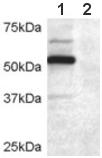 Western blot - DCDC2 antibody (ab45868)