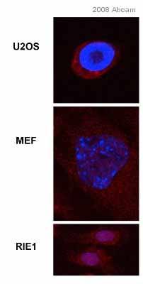 Immunocytochemistry/ Immunofluorescence - FKBP51 antibody (ab46002)
