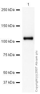 Western blot - Anti-C5 / C5a antibody (ab46151)