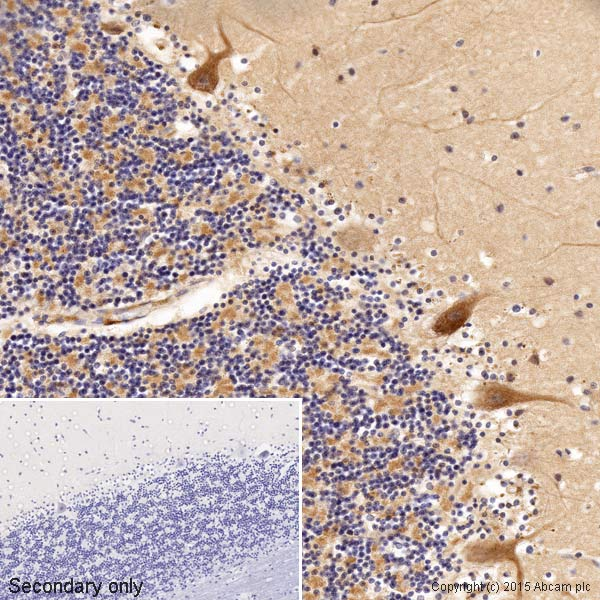 Immunohistochemistry (Formalin/PFA-fixed paraffin-embedded sections) - Anti-VEGFA antibody (ab46154)