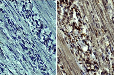 Immunohistochemistry (Formalin/PFA-fixed paraffin-embedded sections) - Anti-MMP9 antibody [SB15c] (HRP) (ab46728)
