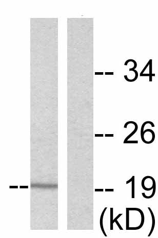 Western blot - Anti-Cofilin (phospho S3) antibody (ab47281)