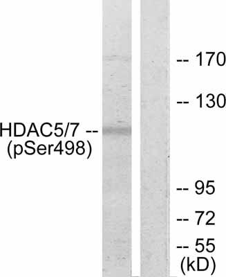 Western blot - Anti-HDAC5 (phospho S498) antibody (ab47283)
